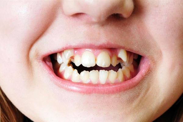 consecuencias maloclusión dental