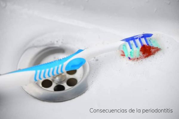 Consecuencias de la periodontitis para la salud