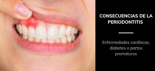 consecuencias periodontitis