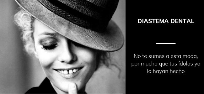 diastema dental famosos