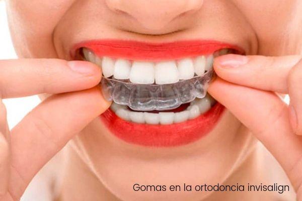 El uso de gomas en la ortodoncia invisalign