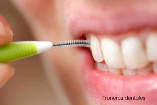 Troneras gingivales: ¿por qué aparecen triángulos negros entre los dientes?
